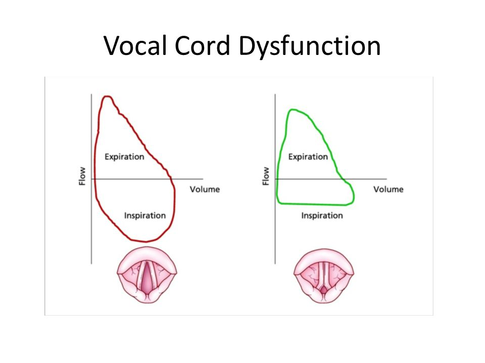Vocal Cord Dysfunction