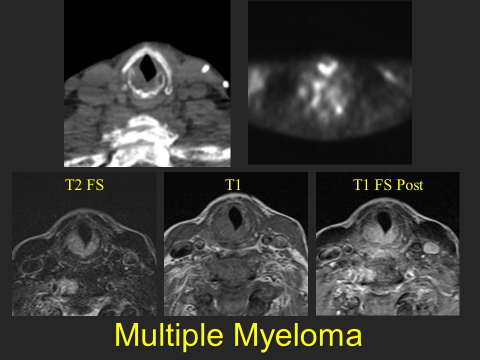 Multiple Myeloma Multiple Myeloma T2 FST1T1 FS Post