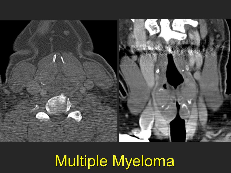 Multiple Myeloma Multiple Myeloma