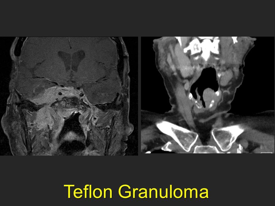 Teflon Granuloma Teflon Granuloma