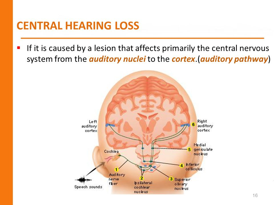 CENTRAL HEARING LOSS If it is caused by a lesion that affects primarily the central nervous system from the auditory nuclei to the cortex.(auditory pa