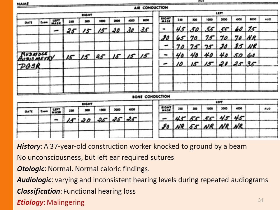 History: A 37-year-old construction worker knocked to ground by a beam No unconsciousness, but left ear required sutures Otologic: Normal. Normal calo