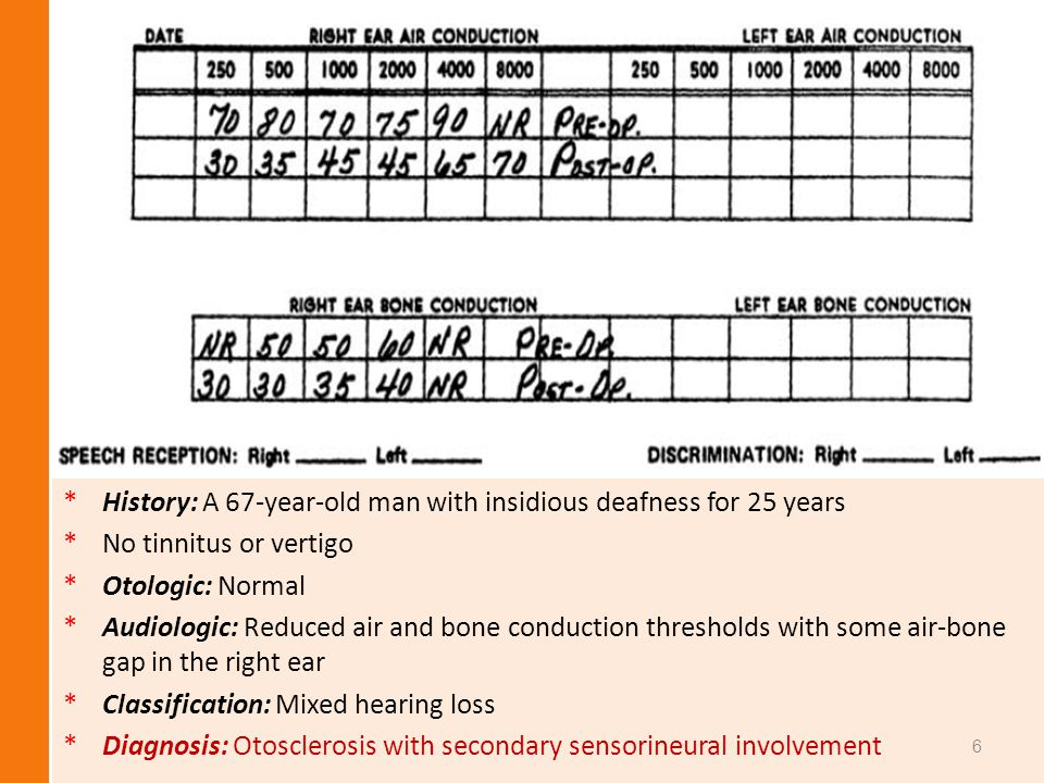 *H*History: A 67-year-old man with insidious deafness for 25 years *N*No tinnitus or vertigo *O*Otologic: Normal *A*Audiologic: Reduced air and bone c