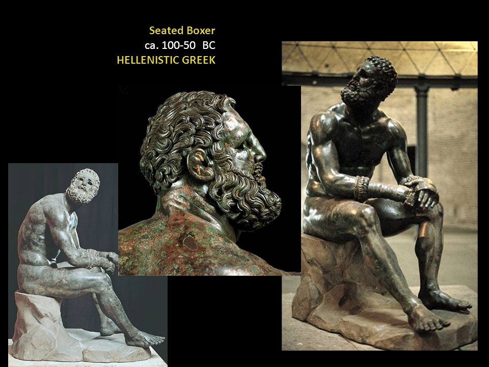 Seated Boxer ca. 100-50 BC HELLENISTIC GREEK