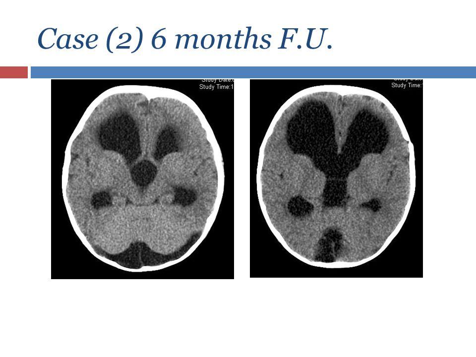 Case (2) 6 months F.U.