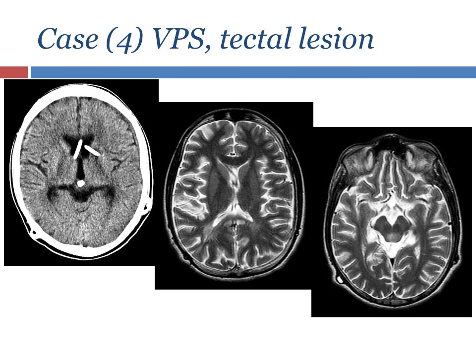 Case (4) VPS, tectal lesion