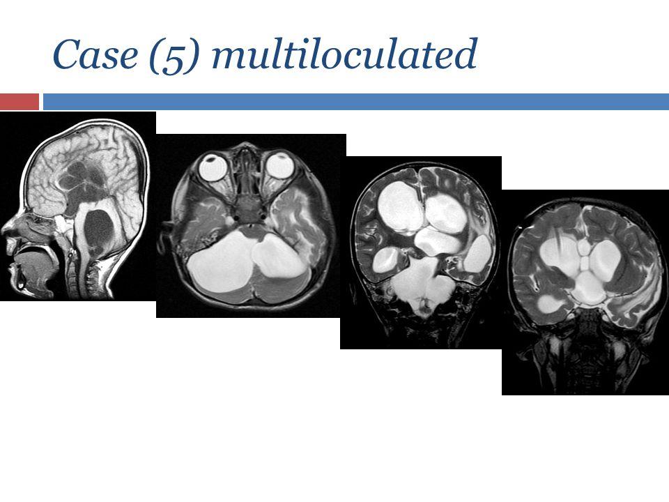 Case (5) multiloculated