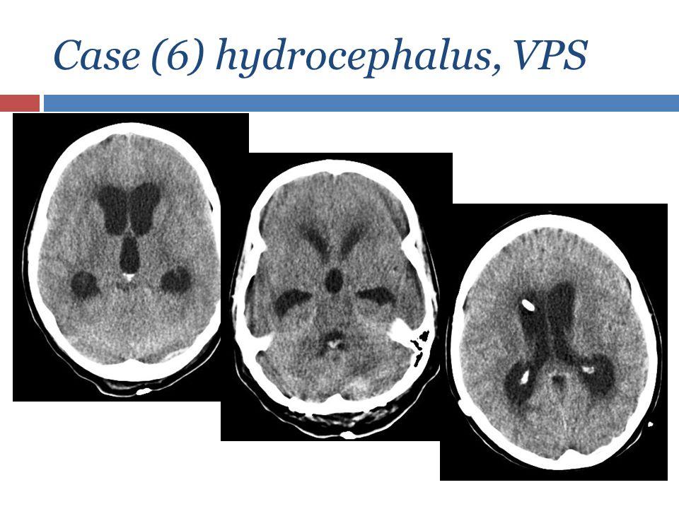 Case (6) hydrocephalus, VPS