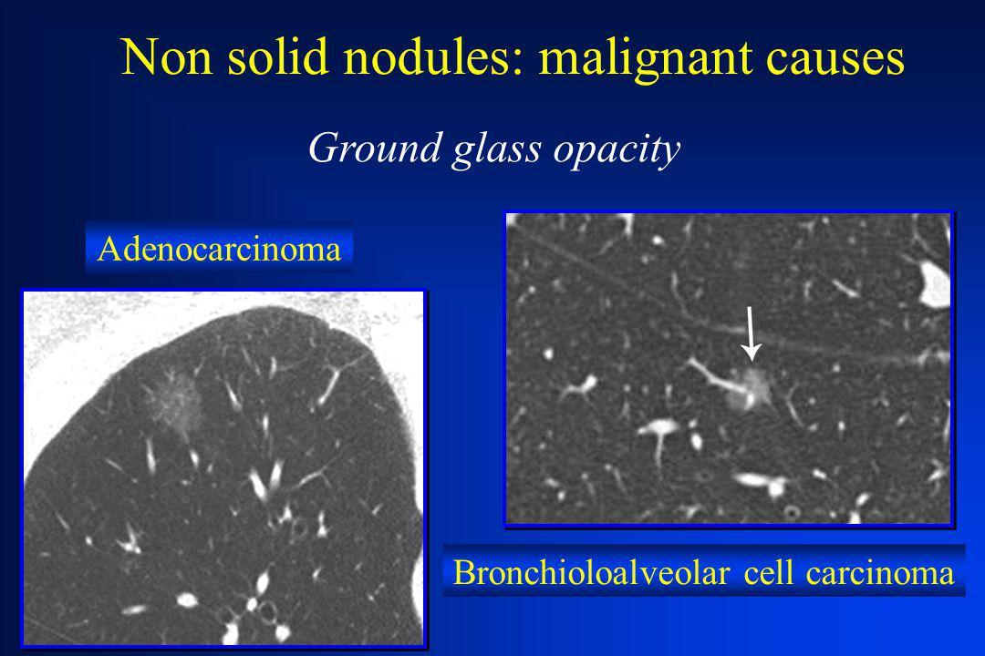 Non solid nodules: malignant causes Adenocarcinoma Bronchioloalveolar cell carcinoma Ground glass opacity