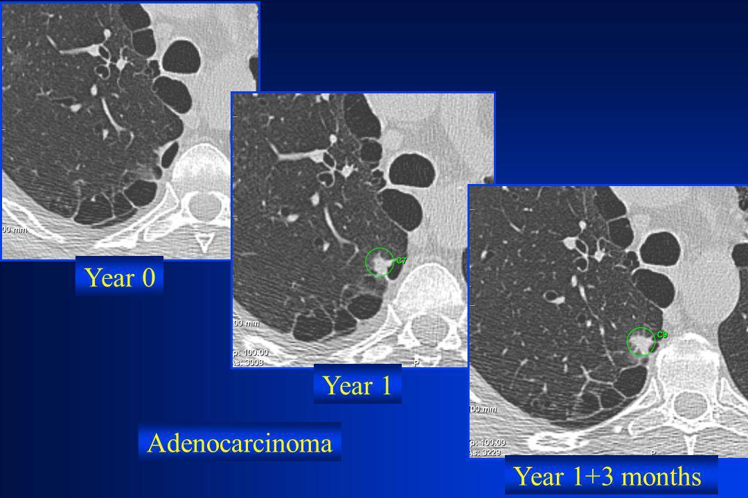 Year 0 Year 1 Year 1+3 months Adenocarcinoma