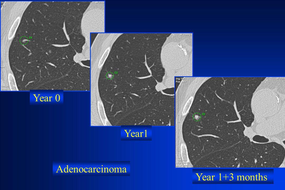 Year 1+3 months Year 0 Year1 Adenocarcinoma