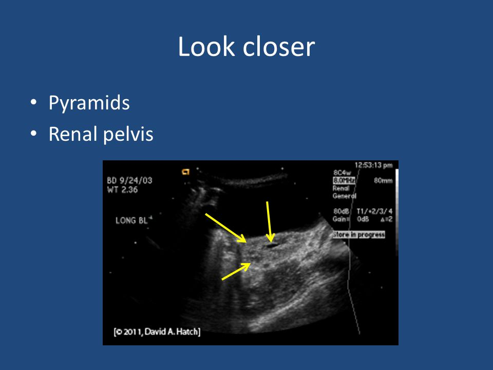 Look closer Pyramids Renal pelvis