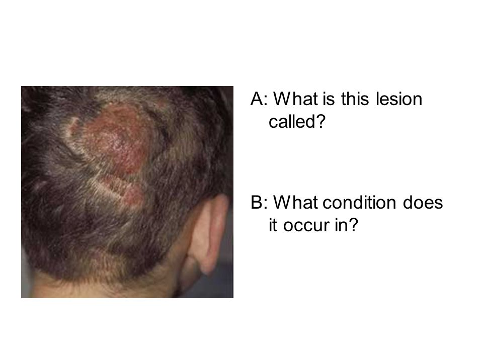 A: What is this lesion called B: What condition does it occur in