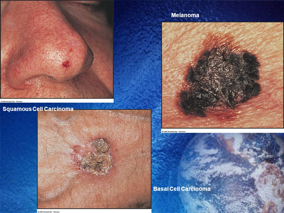 Basal Cell Carcinoma Melanoma Squamous Cell Carcinoma