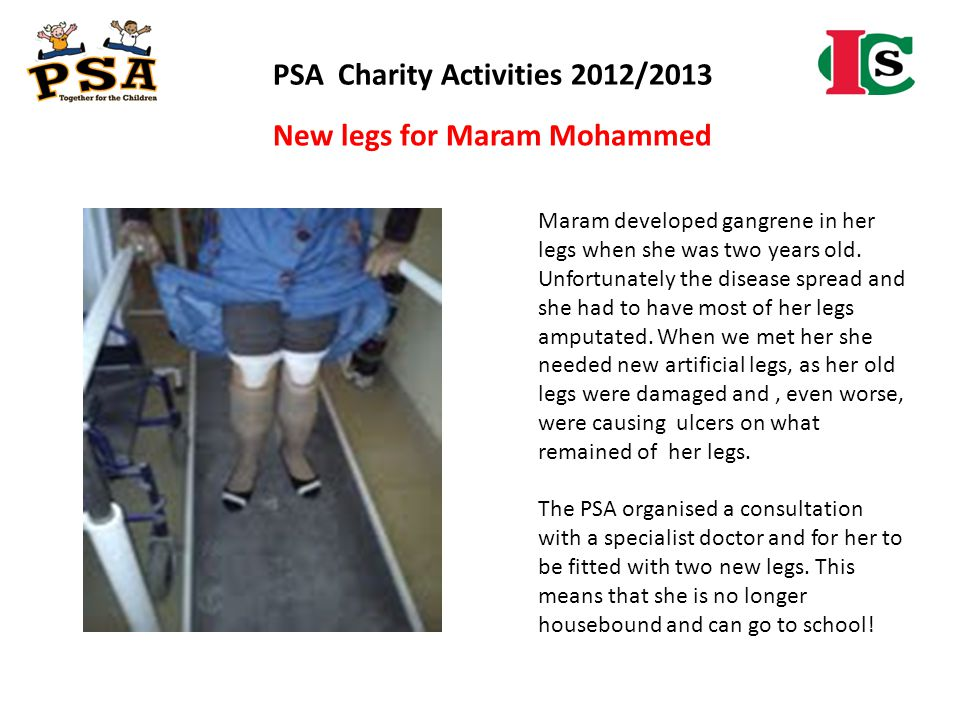 PSA Charity Activities 2012/2013 New legs for Maram Mohammed Maram developed gangrene in her legs when she was two years old. Unfortunately the diseas