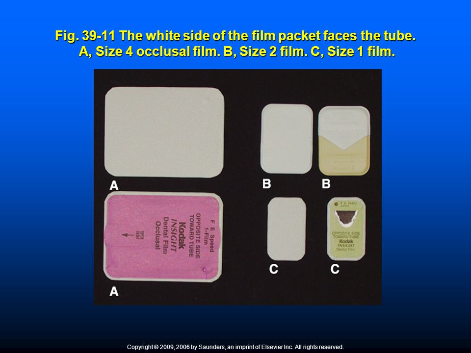 Fig. 39-11 The white side of the film packet faces the tube. A, Size 4 occlusal film. B, Size 2 film. C, Size 1 film. Copyright © 2009, 2006 by Saunde