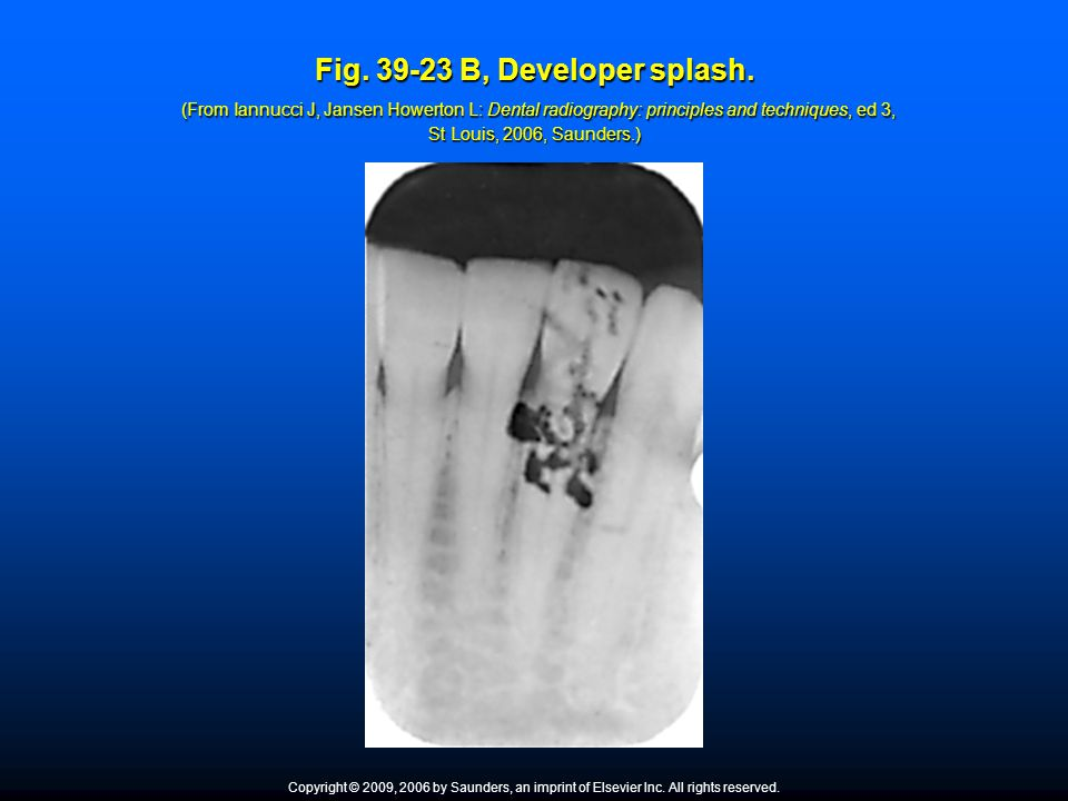 Fig. 39-23 B, Developer splash. (From Iannucci J, Jansen Howerton L: Dental radiography: principles and techniques, ed 3, St Louis, 2006, Saunders.) C