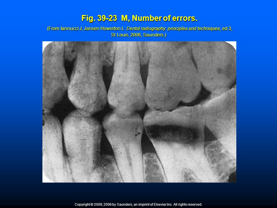Fig. 39-23 M, Number of errors. (From Iannucci J, Jansen Howerton L: Dental radiography: principles and techniques, ed 3, St Louis, 2006, Saunders.) F