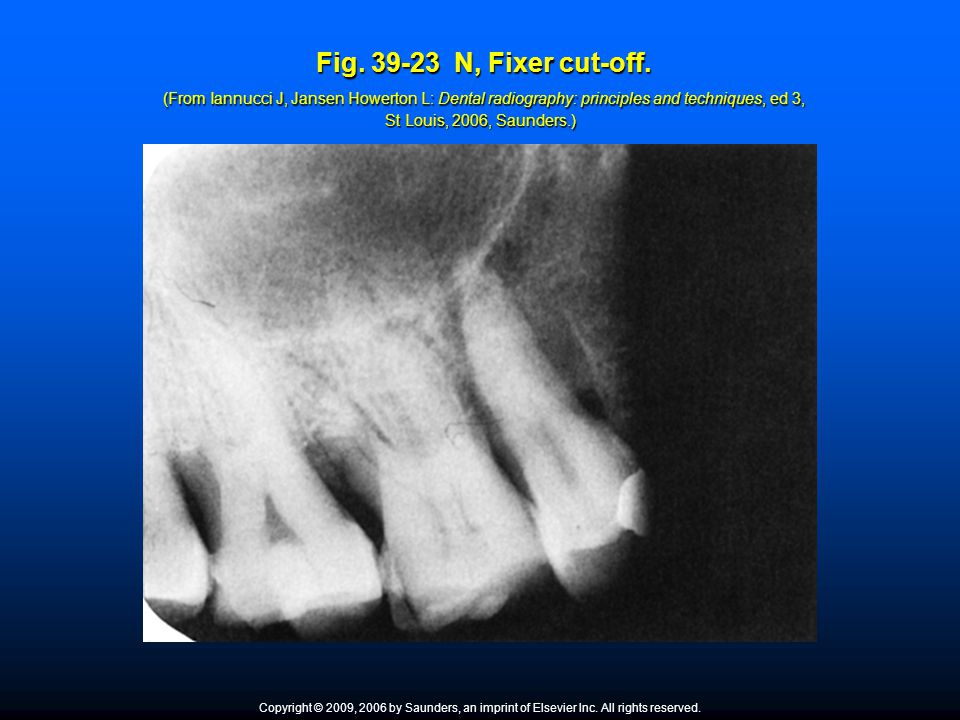 Fig. 39-23 N, Fixer cut-off. (From Iannucci J, Jansen Howerton L: Dental radiography: principles and techniques, ed 3, St Louis, 2006, Saunders.) Fig.