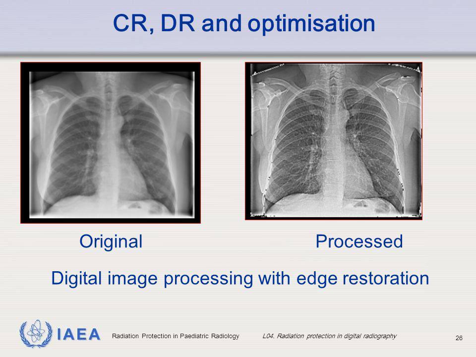IAEA Radiation Protection in Paediatric Radiology L04. Radiation protection in digital radiography 26 Digital image processing with edge restoration O