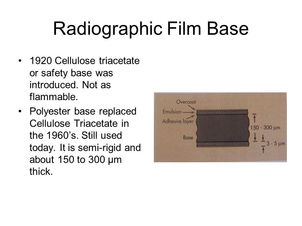 Radiographic Film Base 1920 Cellulose triacetate or safety base was introduced. Not as flammable. Polyester base replaced Cellulose Triacetate in the