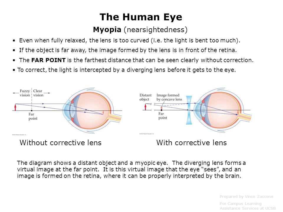Myopia (nearsightedness) Even when fully relaxed, the lens is too curved (i.e. the light is bent too much). If the object is far away, the image forme