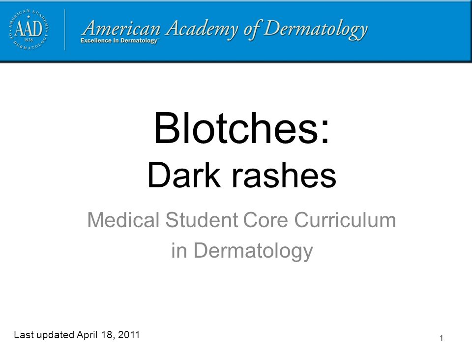 1 Blotches: Dark rashes Medical Student Core Curriculum in Dermatology Last updated April 18, 2011