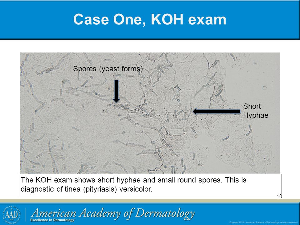 Case One, KOH exam The KOH exam shows short hyphae and small round spores. This is diagnostic of tinea (pityriasis) versicolor. Spores (yeast forms) S