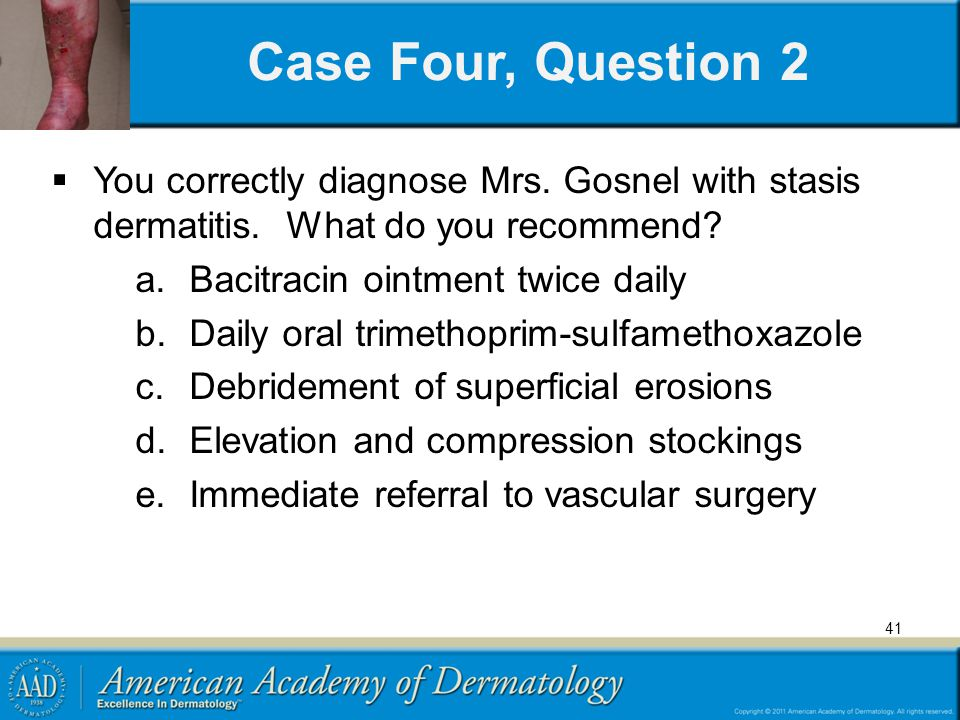 41 Case Four, Question 2 You correctly diagnose Mrs. Gosnel with stasis dermatitis. What do you recommend? a.Bacitracin ointment twice daily b.Daily o
