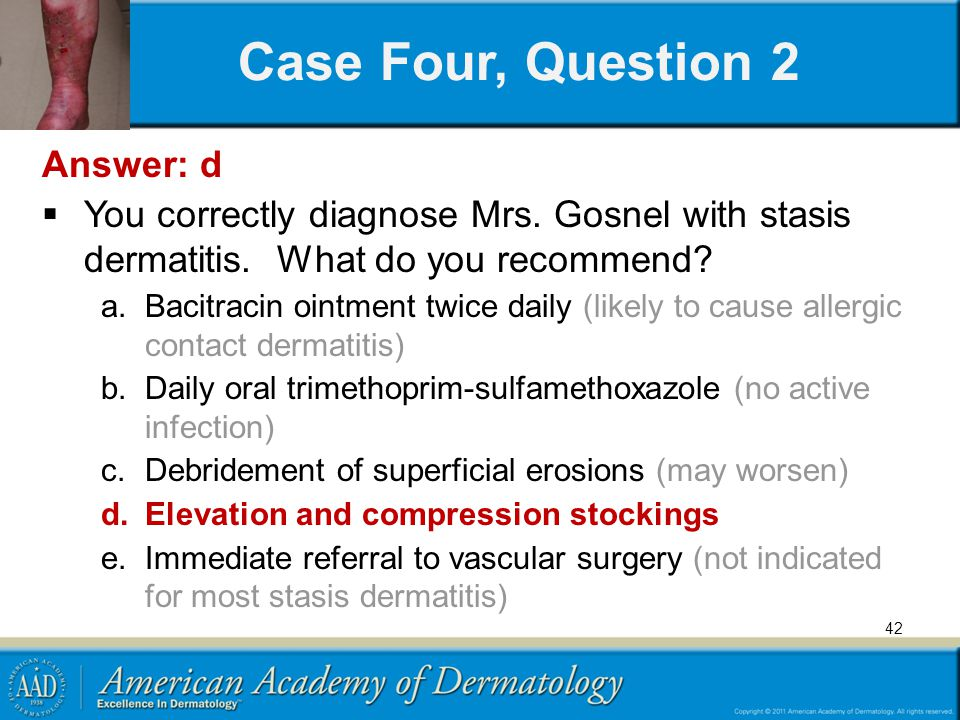 42 Case Four, Question 2 Answer: d You correctly diagnose Mrs. Gosnel with stasis dermatitis. What do you recommend? a.Bacitracin ointment twice daily
