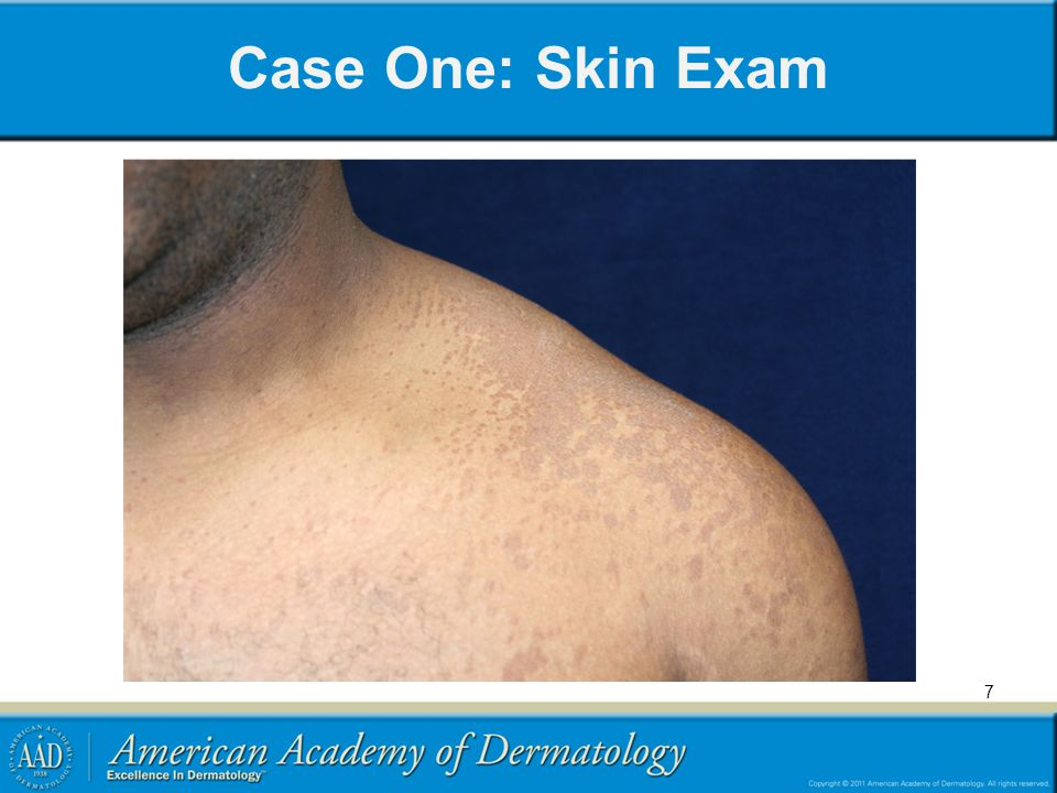 18 Case One, Question 3 Answer: c Which of the following statements is true about the treatment of tinea versicolor.
