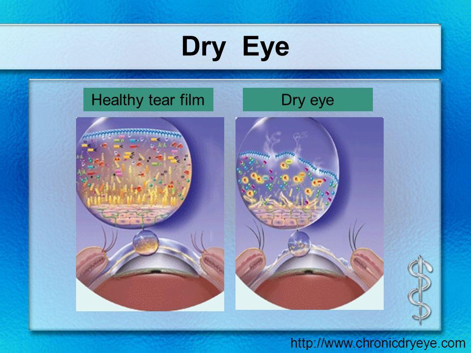 Dry Eye Healthy tear filmDry eye http://www.chronicdryeye.com