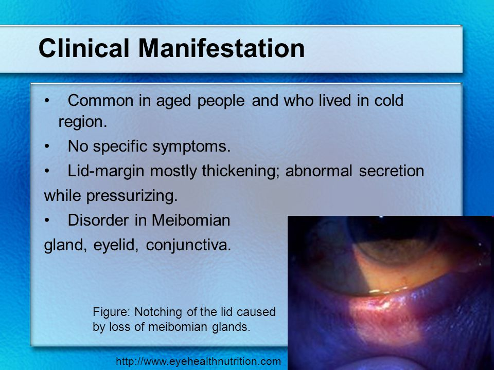 Clinical Manifestation Common in aged people and who lived in cold region. No specific symptoms. Lid-margin mostly thickening; abnormal secretion whil