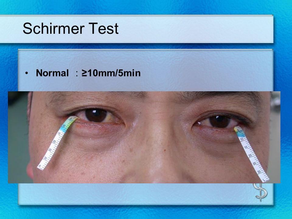 Schirmer Test Normal10mm/5min