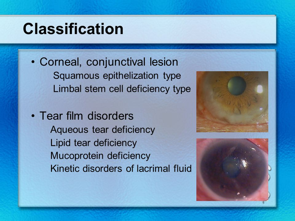 Classification Corneal, conjunctival lesion Squamous epithelization type Limbal stem cell deficiency type Tear film disorders Aqueous tear deficiency