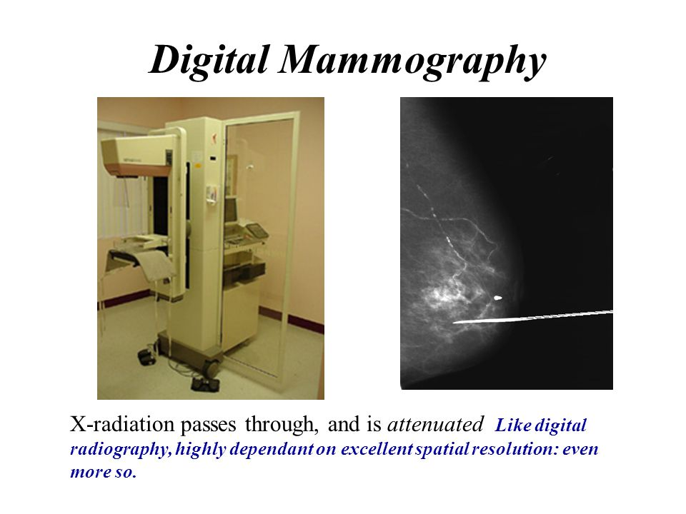 Digital Mammography X-radiation passes through, and is attenuated Like digital radiography, highly dependant on excellent spatial resolution: even mor