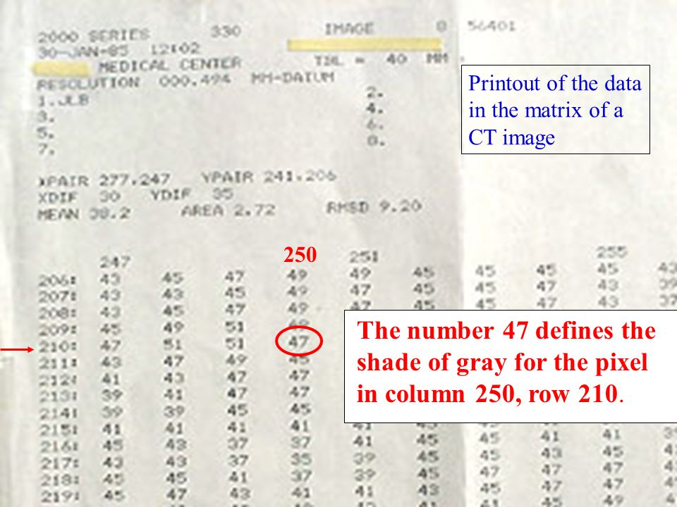 250 The number 47 defines the shade of gray for the pixel in column 250, row 210. Printout of the data in the matrix of a CT image