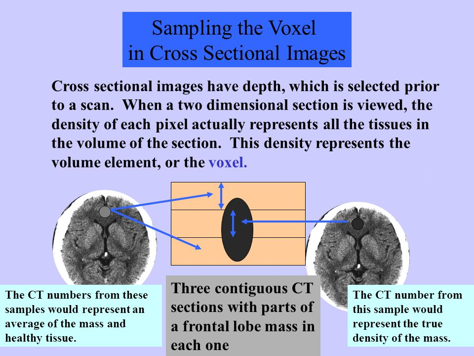 Sampling the Voxel in Cross Sectional Images Cross sectional images have depth, which is selected prior to a scan. When a two dimensional section is v