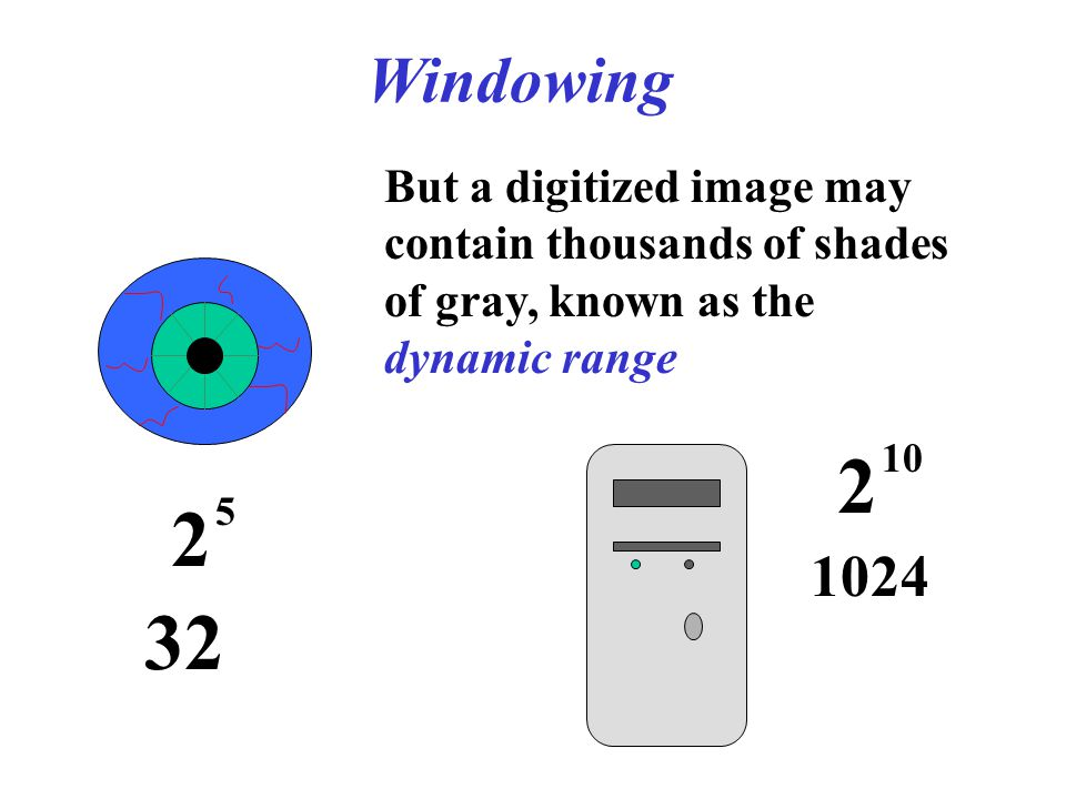 Windowing 2 5 But a digitized image may contain thousands of shades of gray, known as the dynamic range 2 10 1024 32