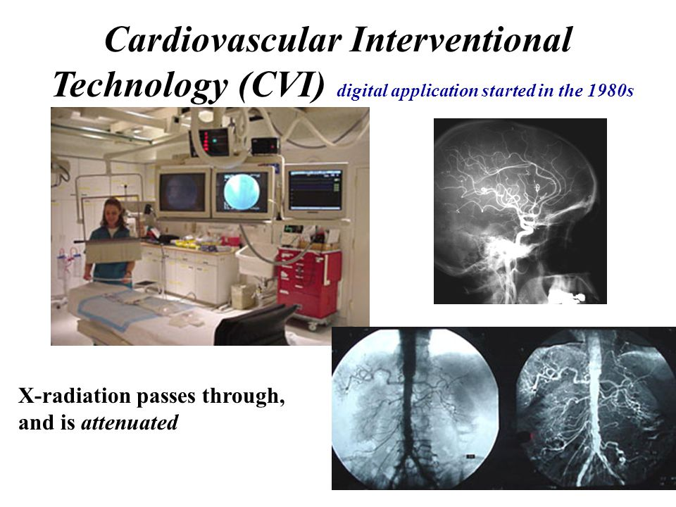 Cardiovascular Interventional Technology (CVI) digital application started in the 1980s X-radiation passes through, and is attenuated