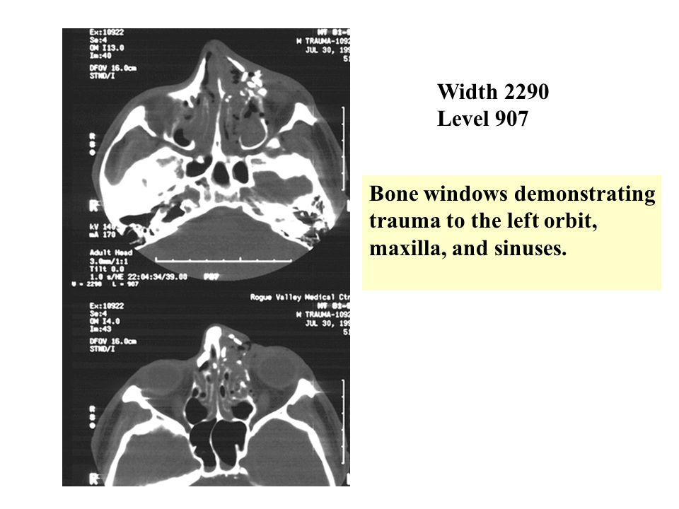 Width 2290 Level 907 Bone windows demonstrating trauma to the left orbit, maxilla, and sinuses.