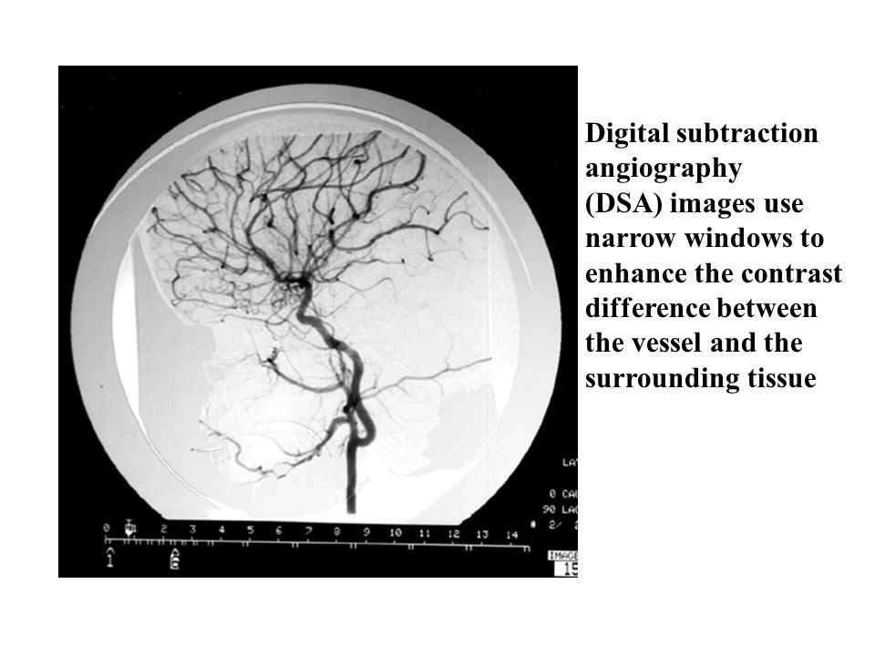 Digital subtraction angiography (DSA) images use narrow windows to enhance the contrast difference between the vessel and the surrounding tissue