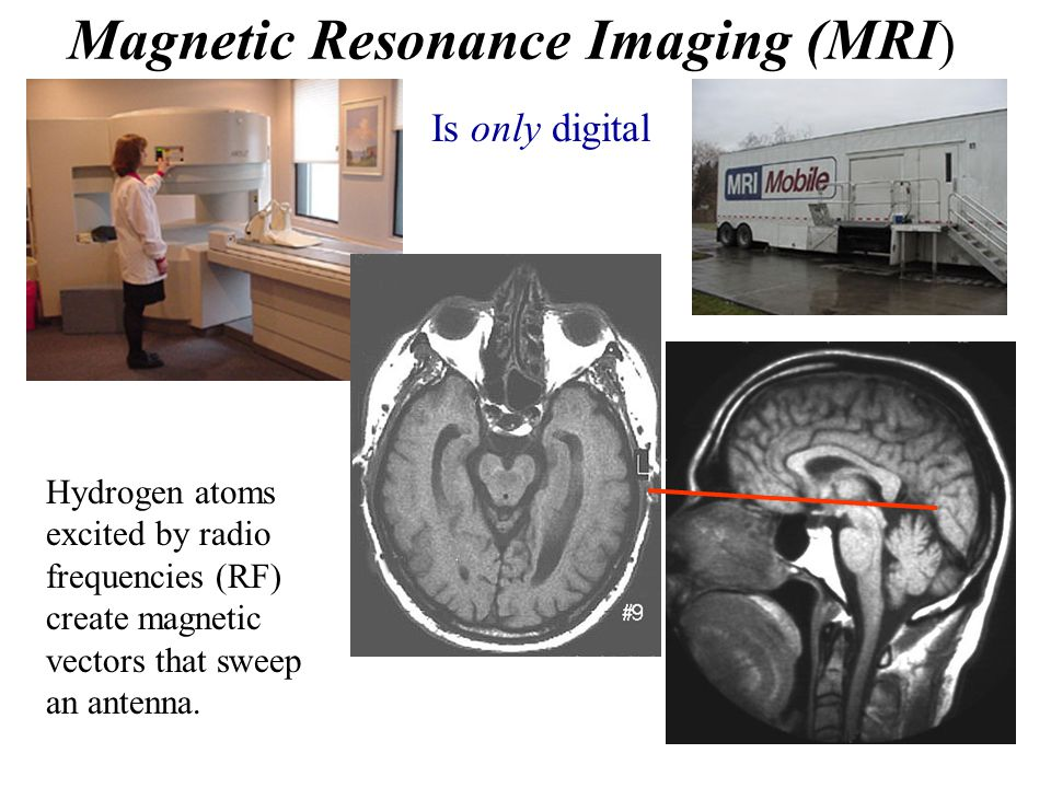 Magnetic Resonance Imaging (MRI ) Is only digital Hydrogen atoms excited by radio frequencies (RF) create magnetic vectors that sweep an antenna.