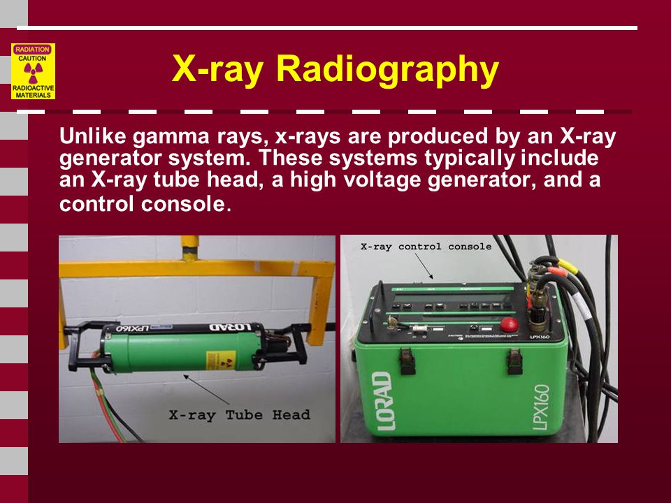 X-ray Radiography Unlike gamma rays, x-rays are produced by an X-ray generator system.