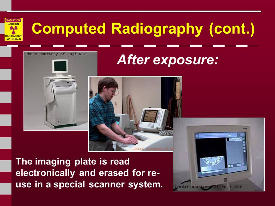 Computed Radiography (cont.) After exposure: The imaging plate is read electronically and erased for re- use in a special scanner system.