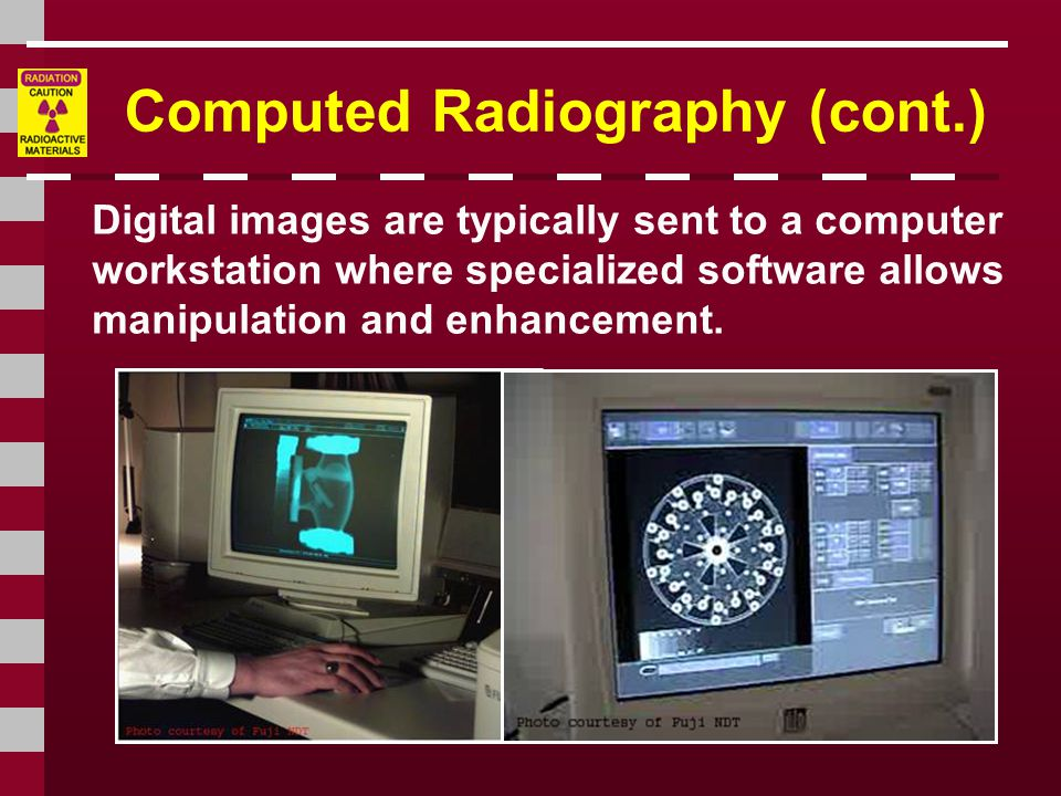 Computed Radiography (cont.) Digital images are typically sent to a computer workstation where specialized software allows manipulation and enhancement.