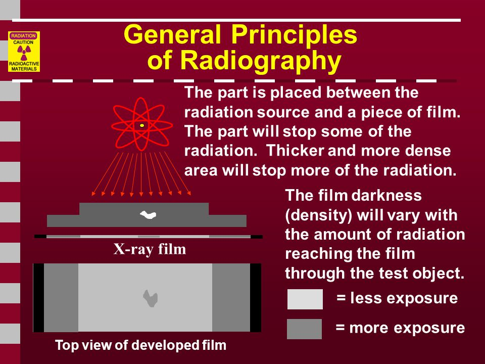 General Principles of Radiography Top view of developed film X-ray film The part is placed between the radiation source and a piece of film.