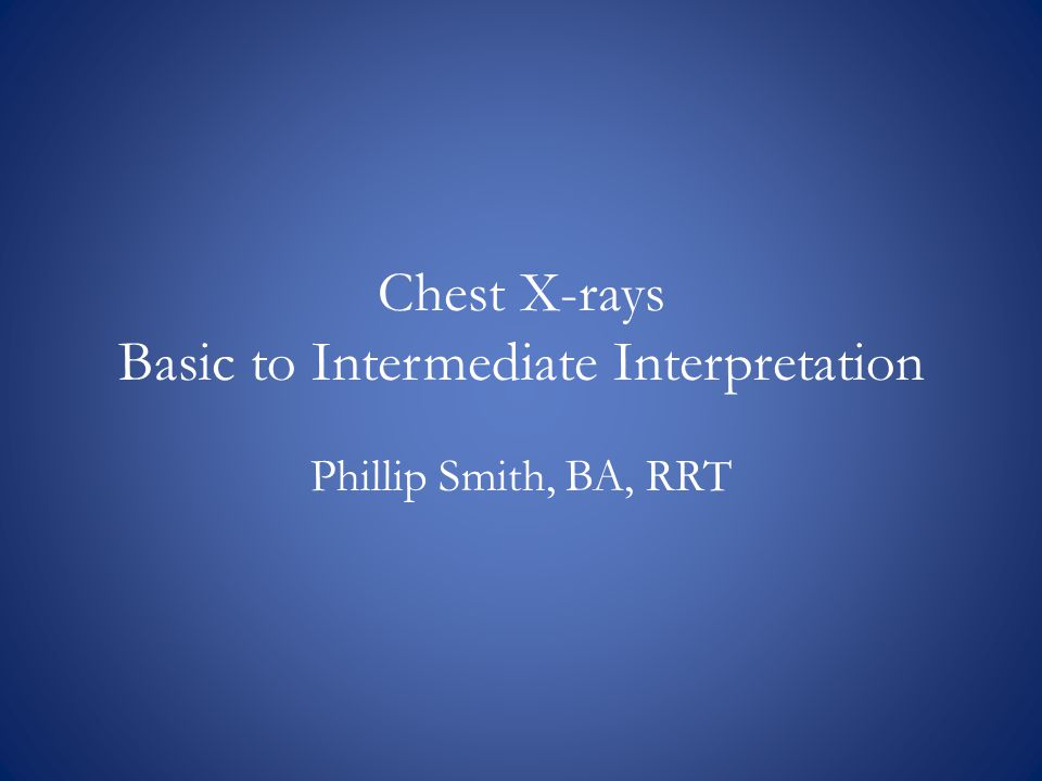 Chest X-rays Basic to Intermediate Interpretation Phillip Smith, BA, RRT