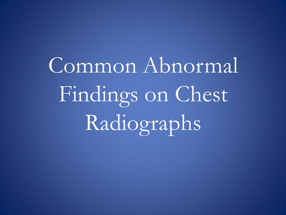 Common Abnormal Findings on Chest Radiographs