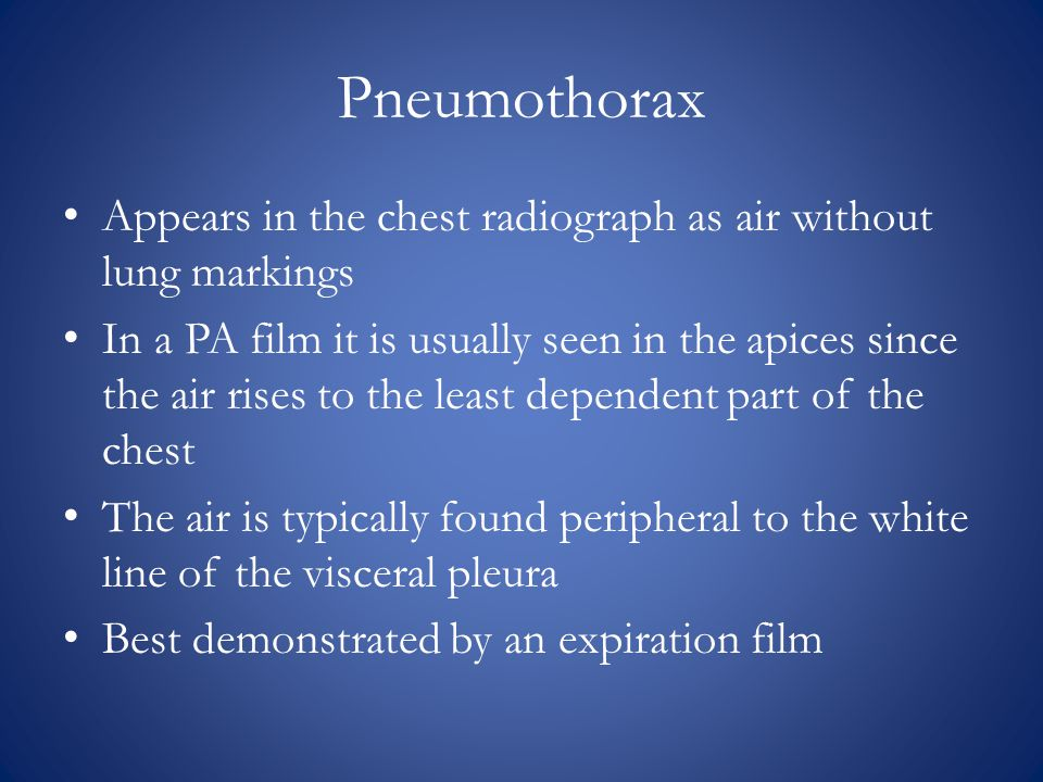 Pneumothorax Appears in the chest radiograph as air without lung markings In a PA film it is usually seen in the apices since the air rises to the least dependent part of the chest The air is typically found peripheral to the white line of the visceral pleura Best demonstrated by an expiration film